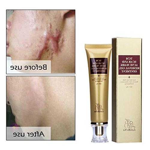 Beross Acne Scar Removal Cream Skin Repair Face